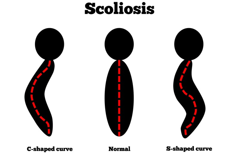 Aloha & Salem, OR scoliosis treatment